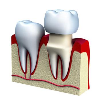 crown-dental-care-scv