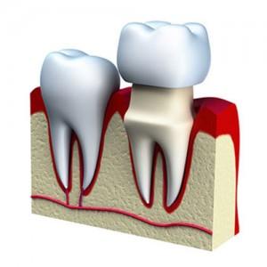 crown-dentist-santa-clarita