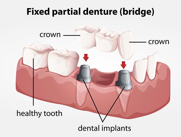 dental-bridge-dr-okuyama