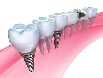 dental-implants-santa-clarita
