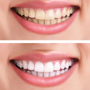 santa-clarita-teeth-whitening